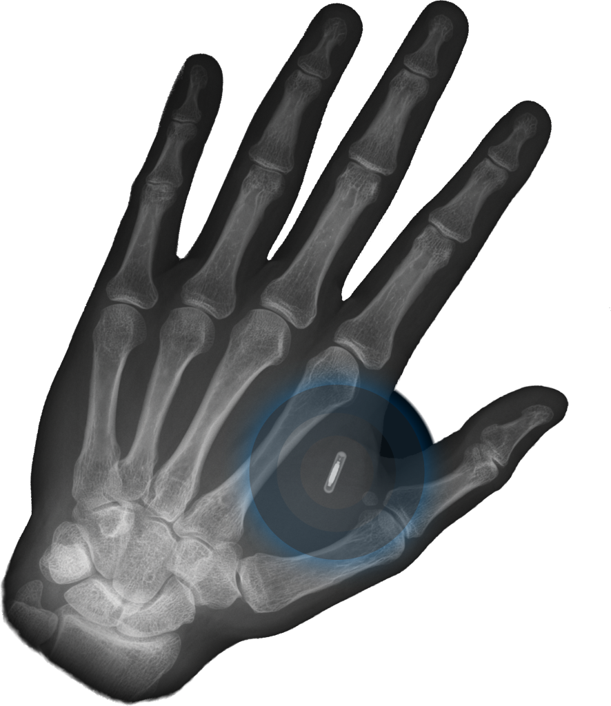 Hand with chip implant x-ray
